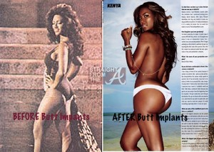 kenya moore before after butt implants