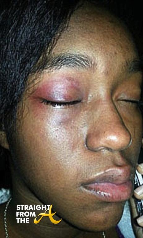Bullies bikinis attacked sunbathing victim filmed assault