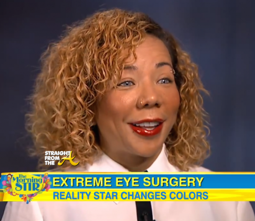 Tiny Harris Eye Color Surgery - StraightFromTheA 3